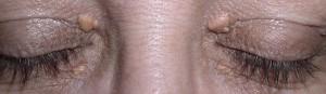 ξανθέλασμα μάτια θεραπεία