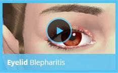 βλεφαρίτιδα αίτια θεραπεία βλεφαρίτιδας